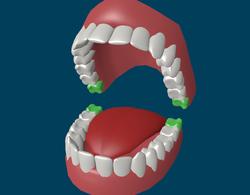 Строение зубов мудрости