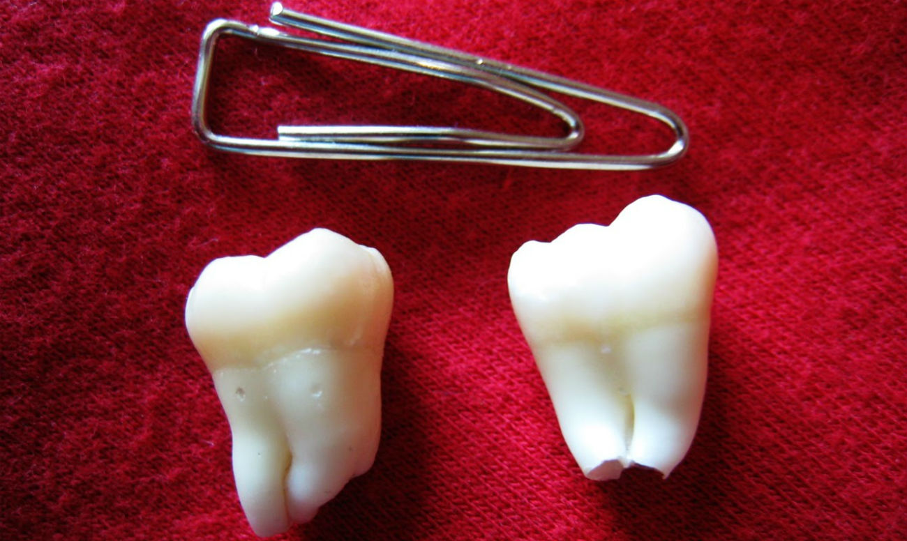 ли отбеливание зубов