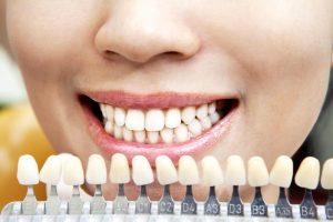 Факторы, которые влияют на цвет зубов