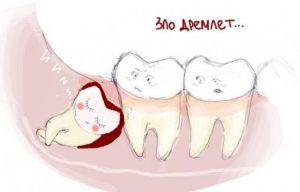 Безопасное удаление зубов мудрости