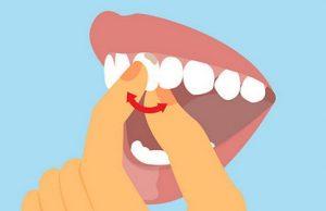 Спасти шатающийся зуб