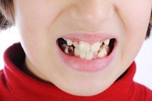 Врожденное отсутствие зубов