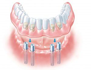 Установка зубного протеза на импланте