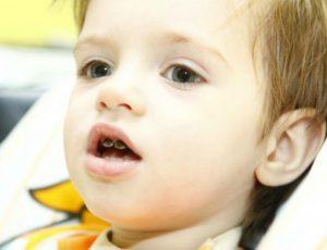 Серебрение молочных зубов в стоматологии