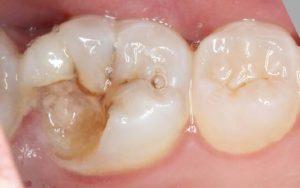 Сломался зуб. Что делать?