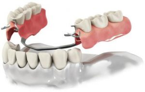 Про технологию протезирования зубов