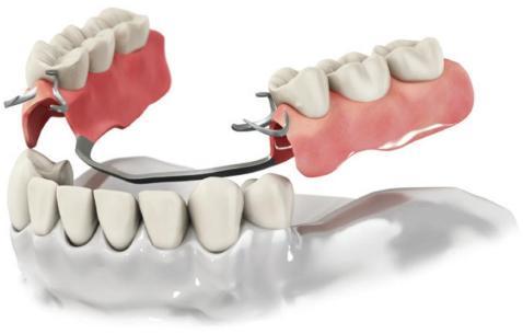 протезные зубы виниры верхние и нежный фото