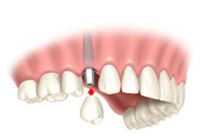 Мифы про имплантацию зубов