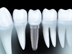 Периодонтит - заболевание костной ткани