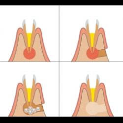 Что такое резекция зубного корня?