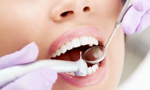 Самые современные методы лечения зубов