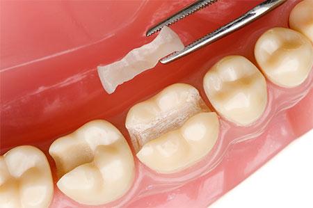 Зуб если пломб не поставить