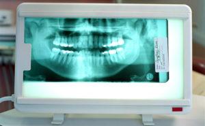 Стоматологические снимки рентген