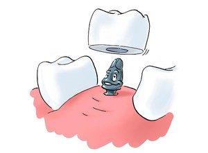 Все особенности имплантации зубов