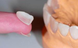 Протезирование на своих зубах