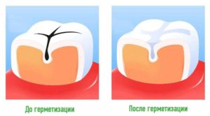 Особенности герметизации фиссур