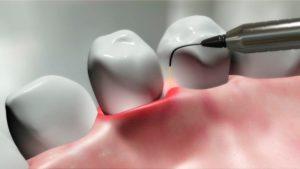 Лазерное лечение пародонта