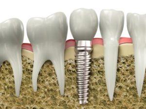 Имплантация зубов в один этап