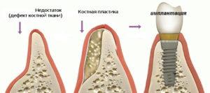 Наращивание костной ткани зуба