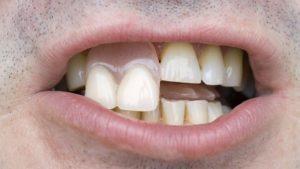Временный зубной протез и какая его функция?