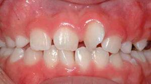 Кривой зуб у ребенка. Что делать?
