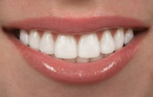 Керамические виниры на зубы