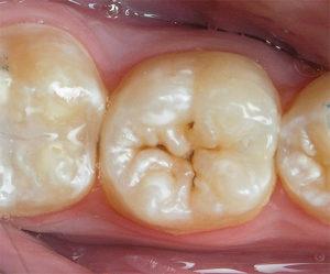 Как защитить детские зубы от кариеса?